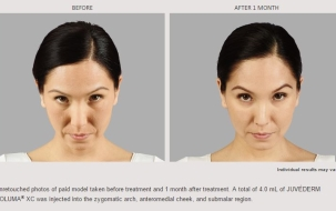 Voluma Before and After 1